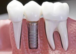 Zobozdravstvo Maribor Rogaska Slatina ponudba Implantologija