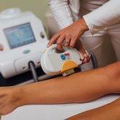 Lasersko odstranjevanje dlačic in fotopomlajevanje Celje, nega obraza z diamantnim pilingom Celje, masaže Celje, shujševalni program Celje, anticelulitni program Celje, Salon Biona Depilacija_laser